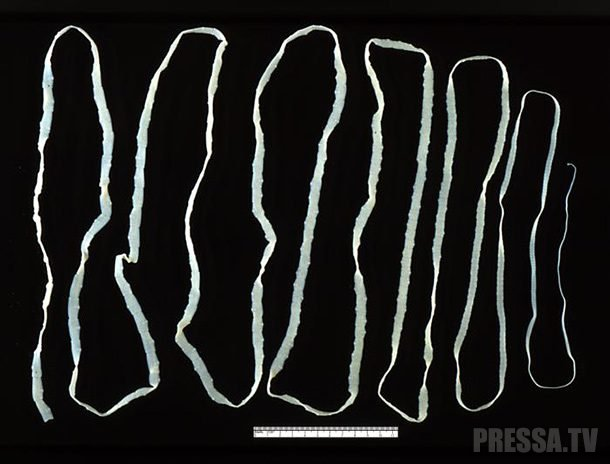giliszta elleni gyogyszer veny nelkul hogyan lehet szájszag alapján azonosítani