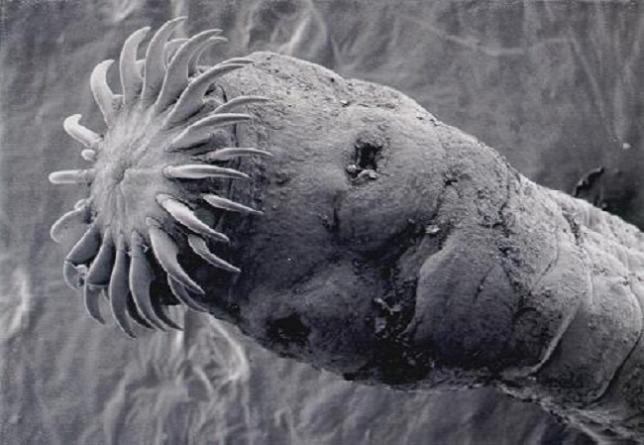 galandféreg paraziták a gyermekek esetében a helmint megelőzés