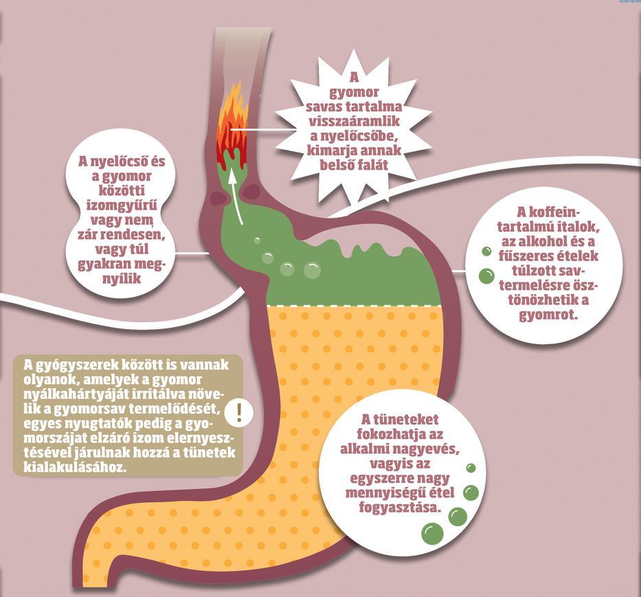 tüskék férgek lányok tünetei hogyan lehet parazitákat gyógyszerekkel kezelni