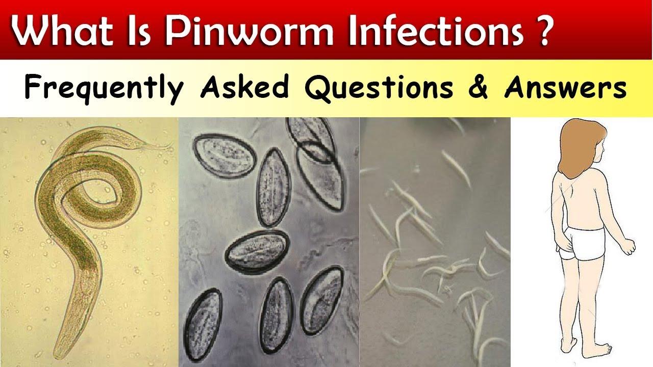 írja le a pinworm fertőzés módját is giardia easy to get rid of