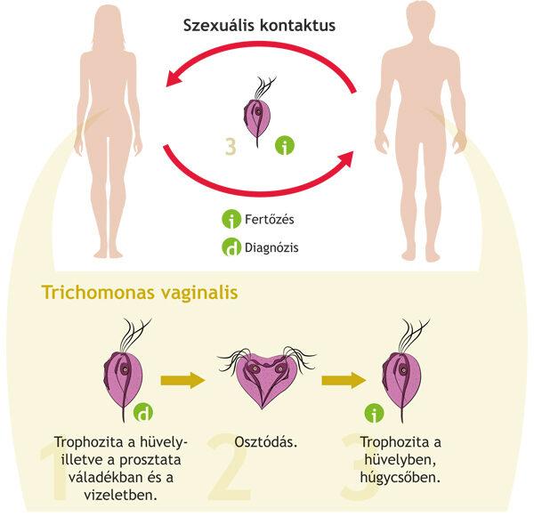 helminth fertőzések tünetek kezelése