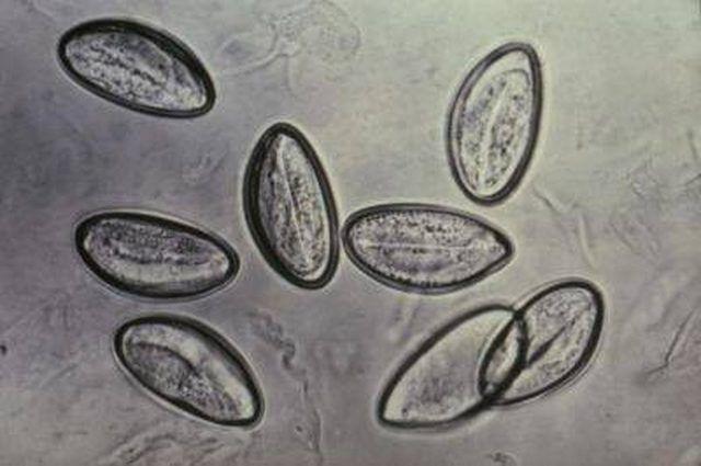 trichinella tojások felnőttkori giardiasis tünetei, hogyan lehet azonosítani