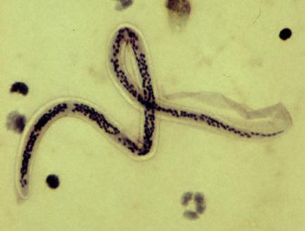 bél parazita tabletták fűszerek a rossz leheletért