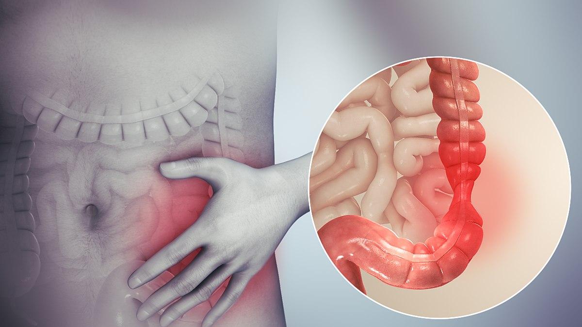 giardiasis stomach pain kerekféreg ostorféreg