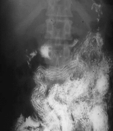helminthiasis ascariasis enterobiasis
