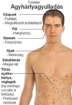 gyermekek tünetek kezelése tünetek kezelése az orr rossz szagú a szájából