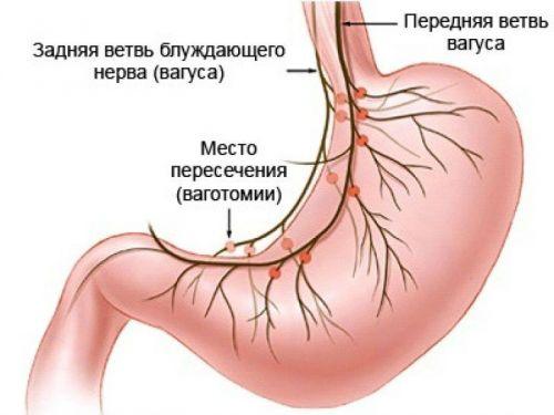 gyomor-bél traktus szaga a szájból laporan praktikum platyhelminthes planaria