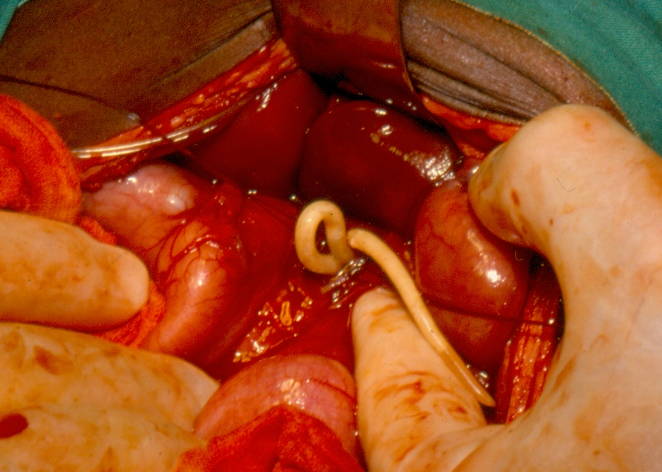 a helminthiasis