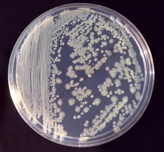 paraziták tele A pinworms vékony vagy vastag parazitizál