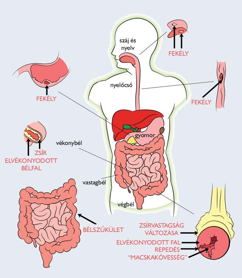 Tisztítás a paraziták népi gyógyszerek máj, A test megtisztítása és helyreállítása a parazitáktól