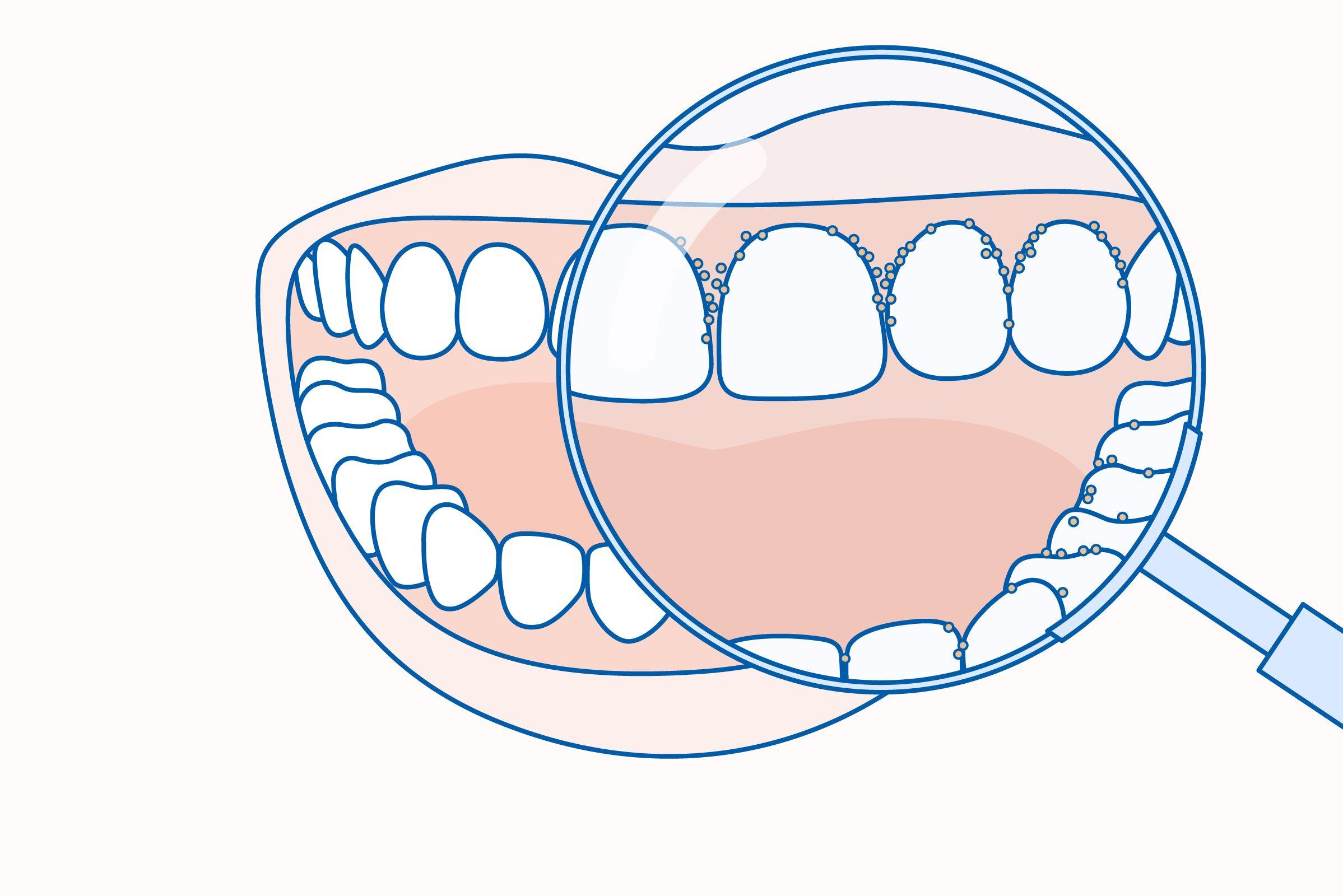 a nyelv plakkja rossz leheletet okoz mi gyógyítja meg az összes férget