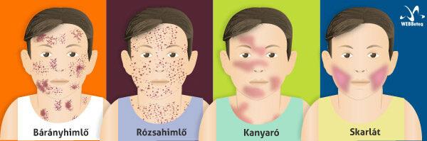 Gyermekek és a paraziták | Mik a fertőzés okai.