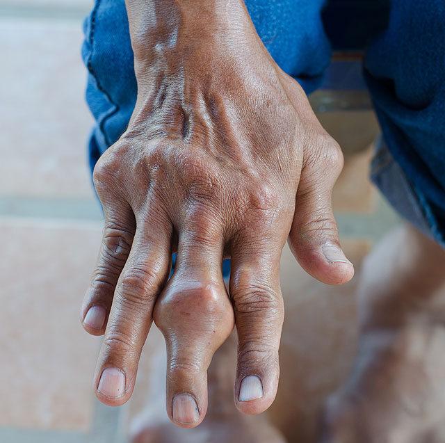 giardia signs and symptoms in humans sarcocystis paraziták