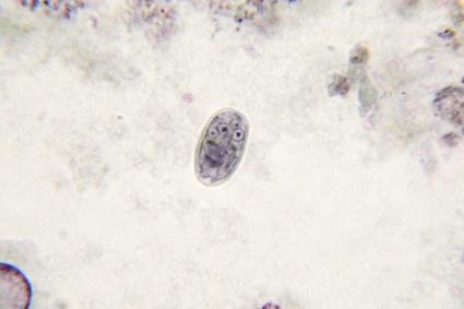 giardia betegség