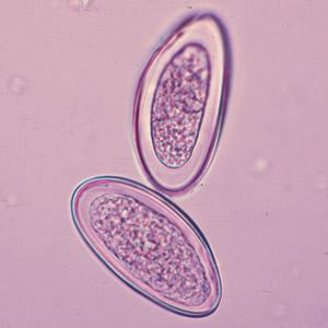 Lehet a pinworms viszketés nélkül, Mi okozhat viszketést