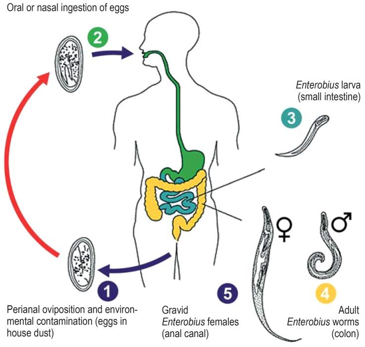Milyen tabletták képesek a pinworms- hez. Pinworms székrekedés