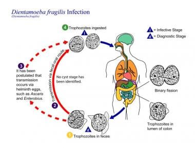 helminthiasis patogenezis
