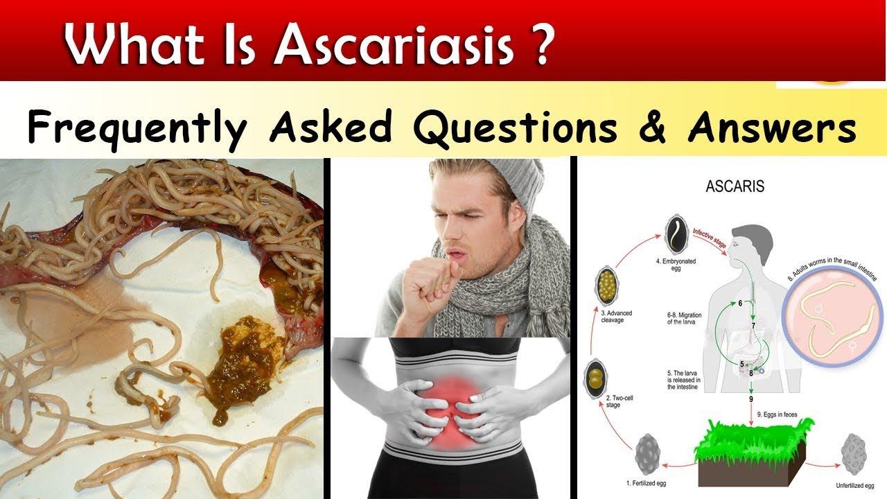 hogy az ascaris meghal helminthiasis gyermekklinikai kezelésben