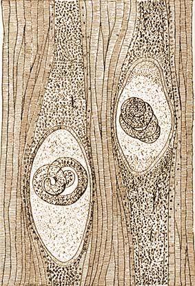 hosszú férgek egy gyermekben fc paraziták