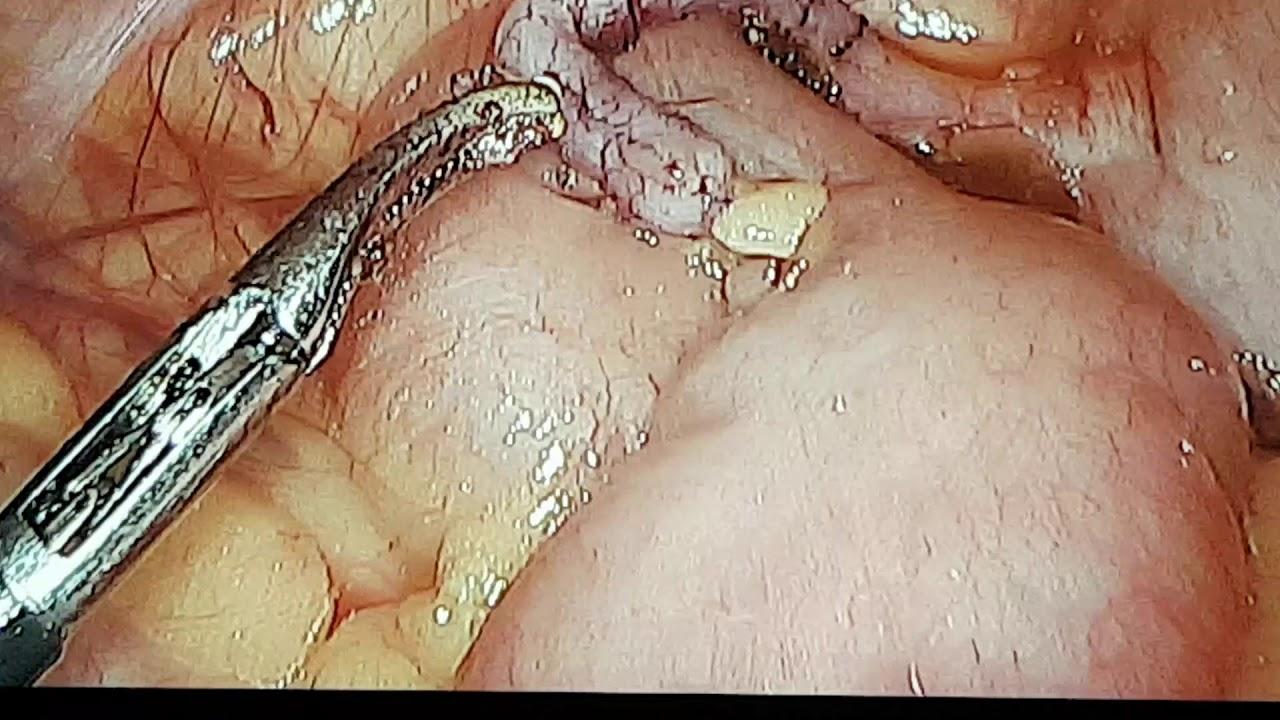 kdl enterobiasis fonalféreg fertozes kezelése