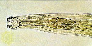 pinworm gastritis pinworm rögzítő szervek