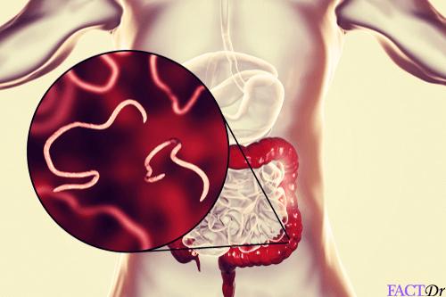 mi okozza a halitózist pinworms egy terhes nőben, mit kell tenni