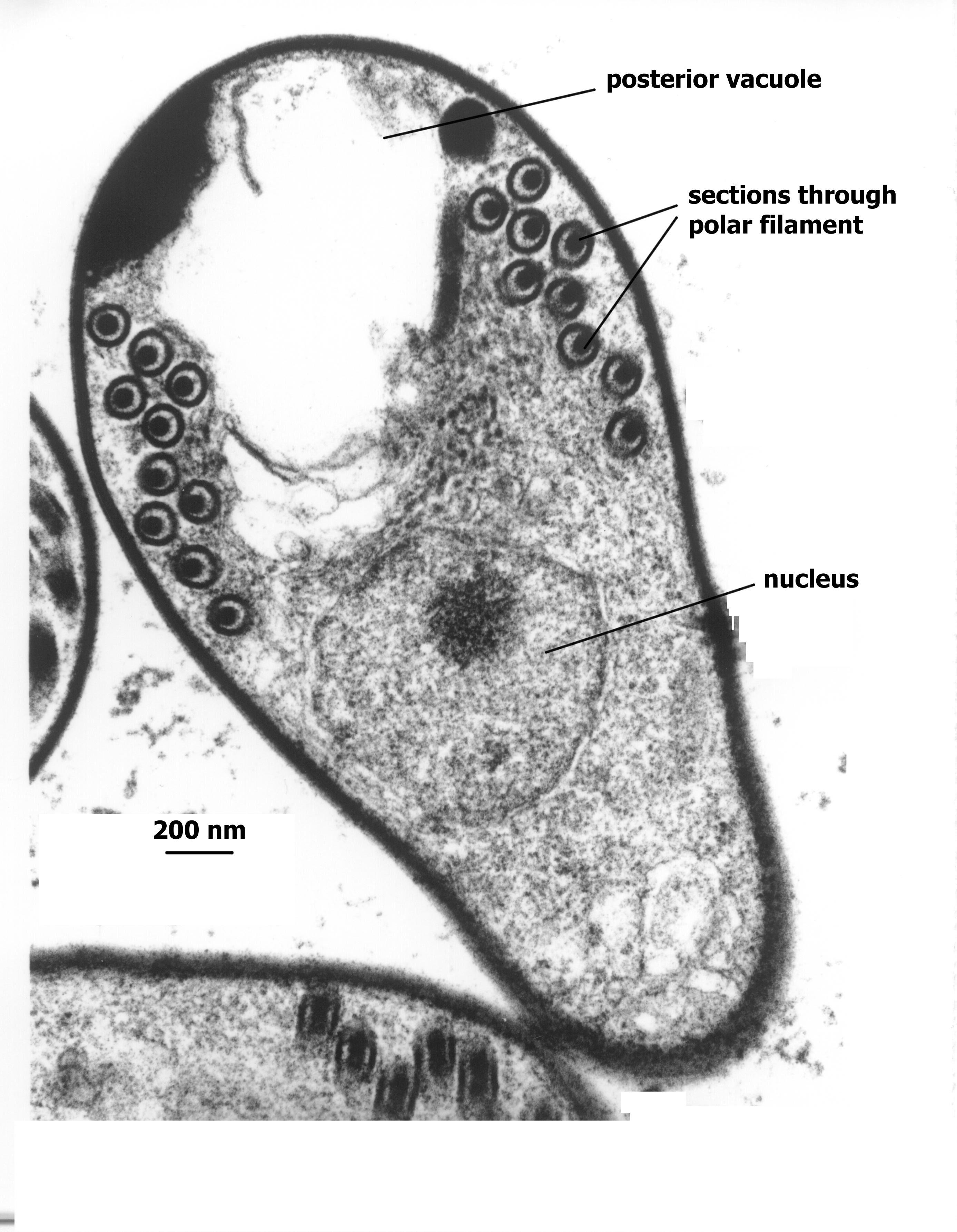 trichinella schizogony nyers élelmezésbeli tisztítás a parazitáktól