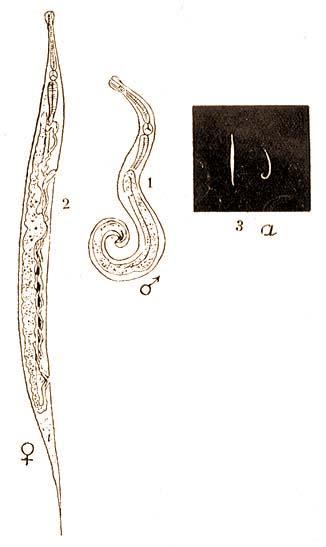 thrombocytopenia parazitákkal