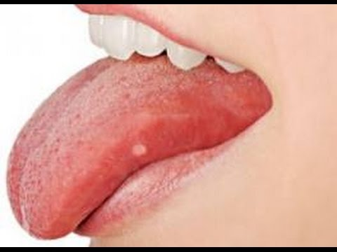 nyelv fehér rossz szájjal borított