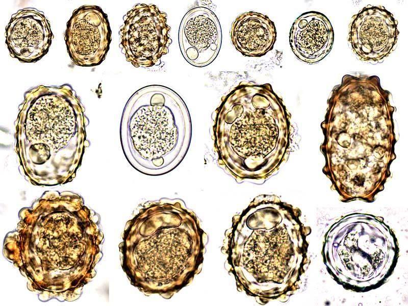 Ascaris tojás a székletben. Az orsóférgesség okai, tünetei és kezelése