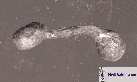 hpv rák a torokban pillangó zeugma pulyka vélemény