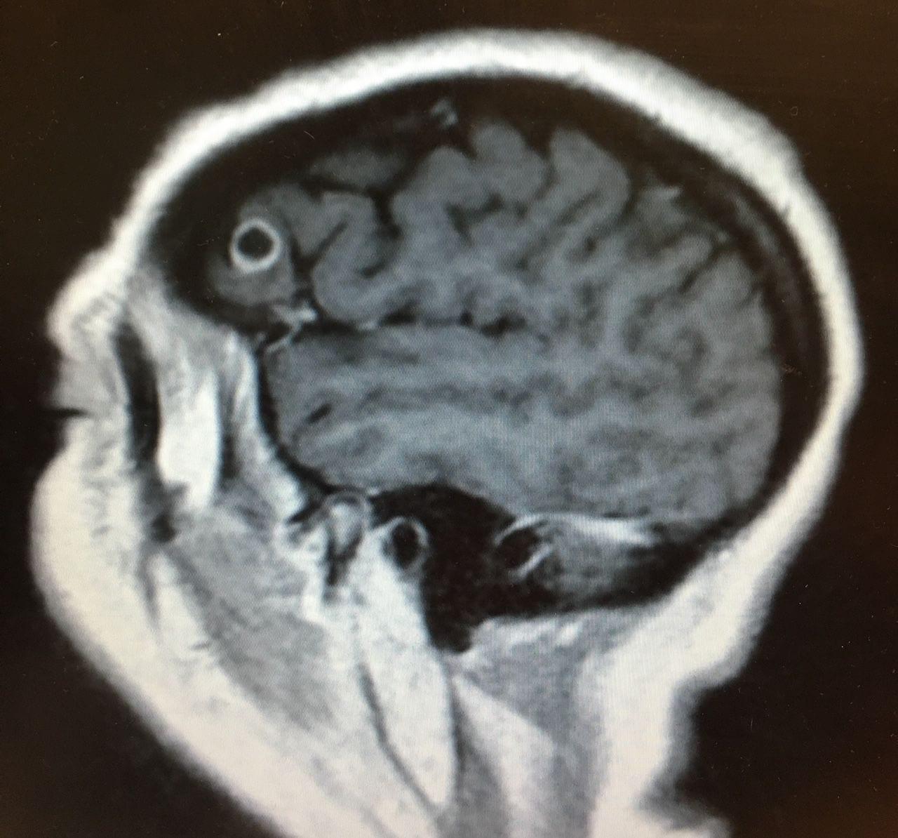 parazita az agyban férgek gyógyszere egy egész személy számára