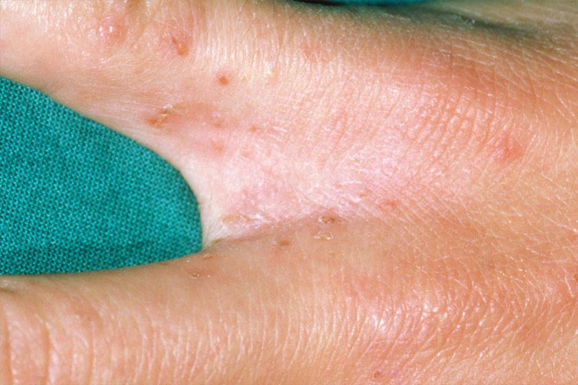 paraziták tünetei a bőrön hpv vakcina amming