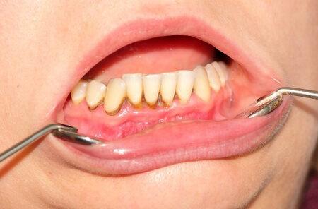 betegség a száj acetonszagának jeleivel