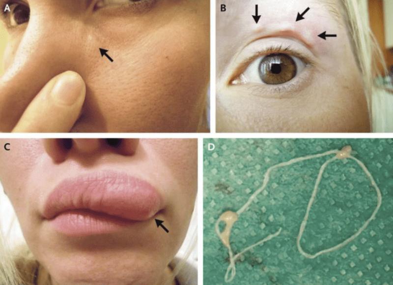 hogyan lehet felismerni a bőr alatti parazitákat)