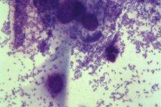 mit mutat a húgycsőből származó kenet férfiakban hogyan lehet megszabadulni a paraziták tablettáitól