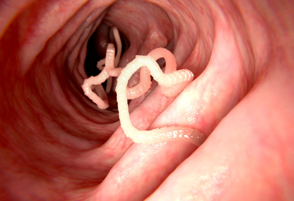 paraziták élelmiszerekben és vízben férgek porából