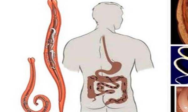 Paraziták a testzsírban - vasfehu